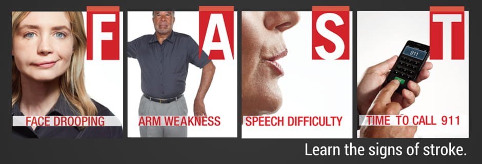 FAST face drooping arm weakness speech difficultly time to call 911. learn signs