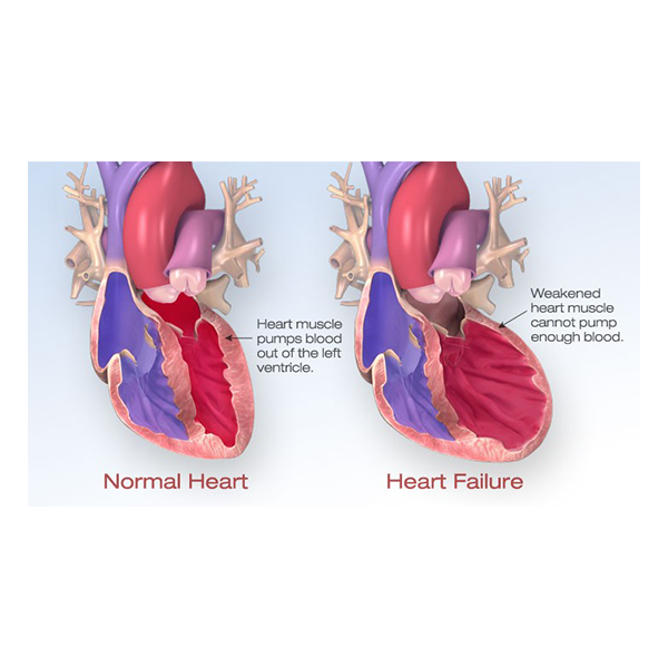 Normal Heart, heart muscle pumps blood out of the left ventricle. Heart Failure: weakened heart muscle cannot pump enough blood.