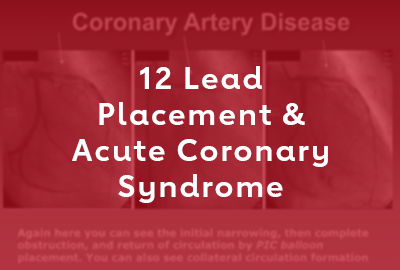 12 Lead Placement & Acute Coronary Syndrome Webinar