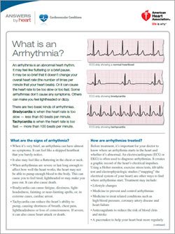 What is arrhythmia sheet