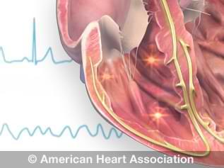 Congenital Heart DefectAwarenessSupportwarriorHeart MomPinwheelRibbonHeadbandGirlsBowHairclip