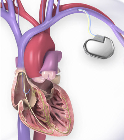 illustration of heart and ICD