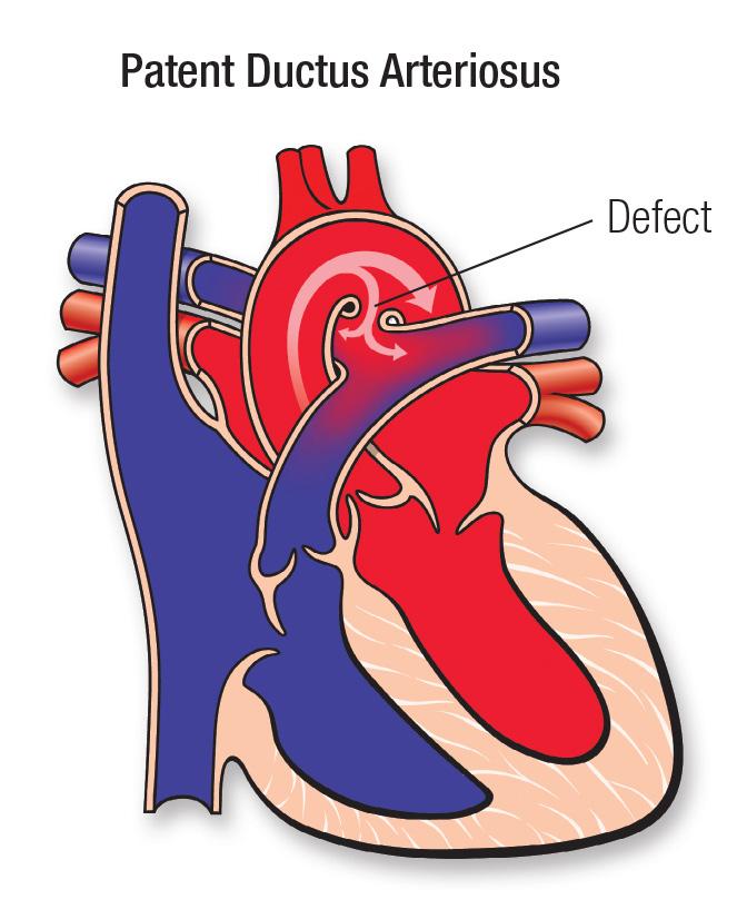Patent Ductus Arteriosus Pda American Heart Association