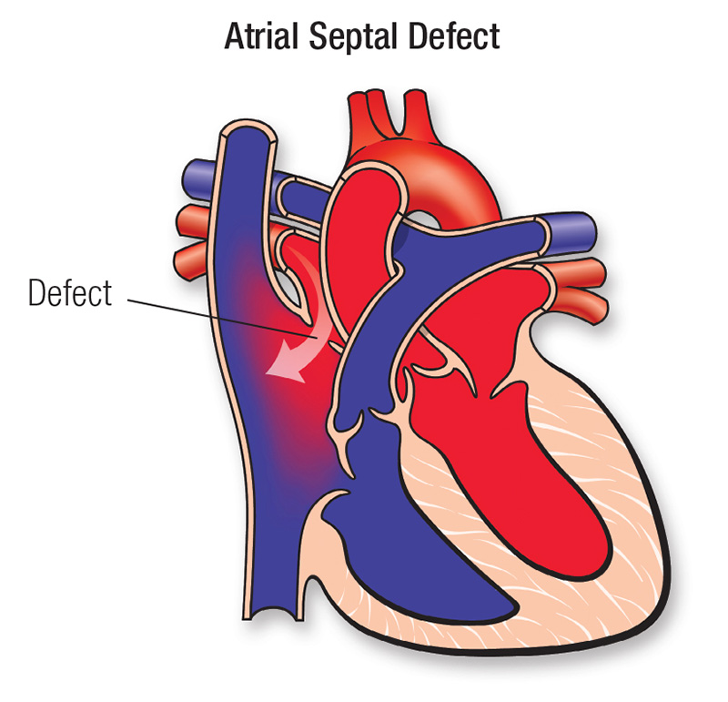 atrial septal defect diagram