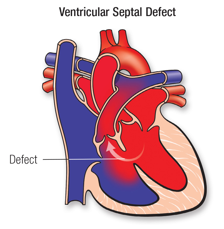 Ventricular Septal Defect  Vsd