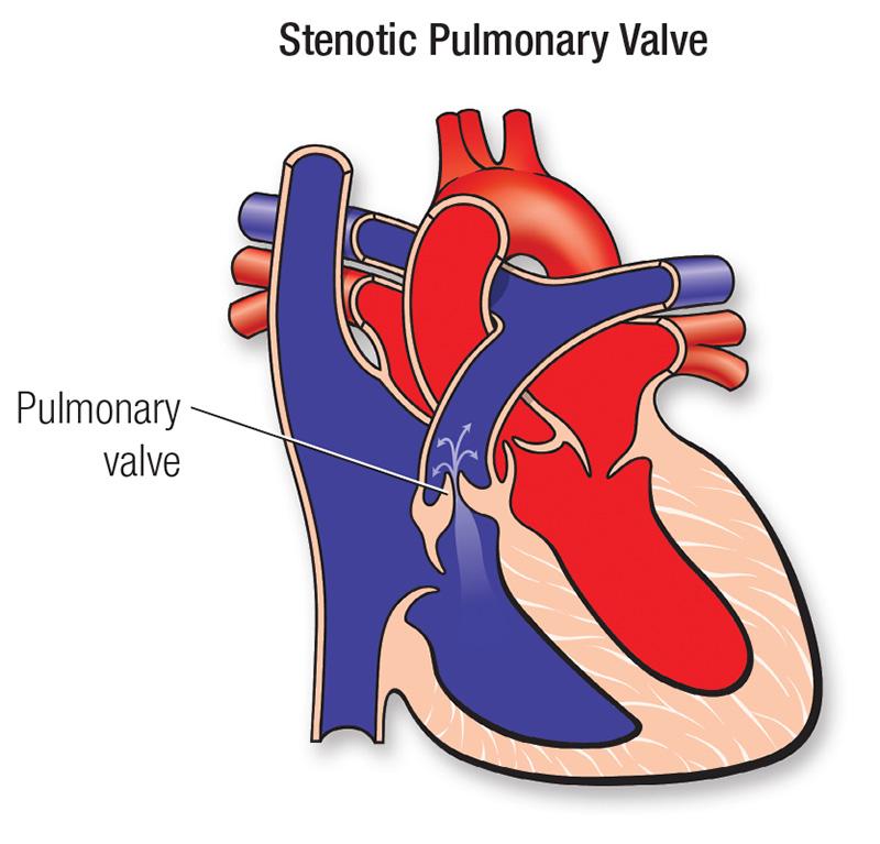 stenosis adults pulmonary Congenital