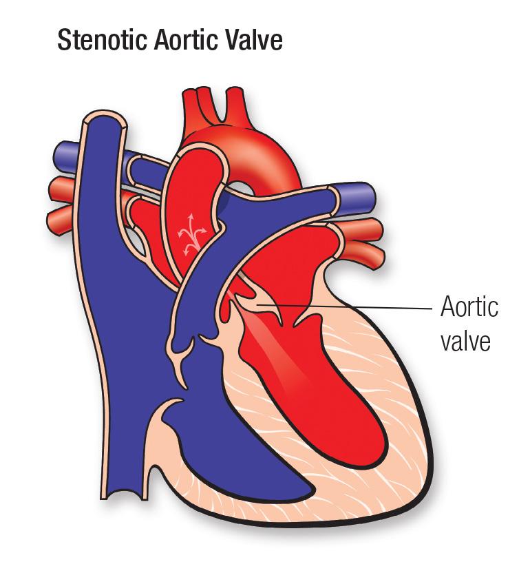 stenotic aortic valve