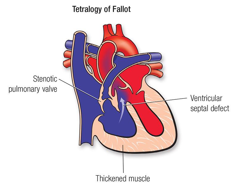 Tetralogy of fallot american heart association tetralogy of fallot diagram ccuart Gallery