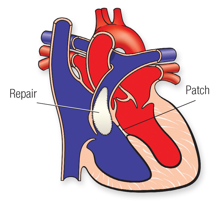 Tetralogy of Fallot patch diagram