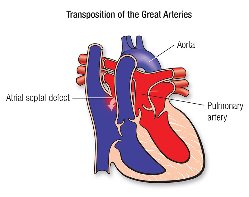 d transposition of the great arteries american heart association