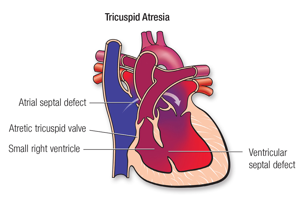 Heart Diagram Tricuspid Valve Heart Diagram Labeled Wire Diagrams