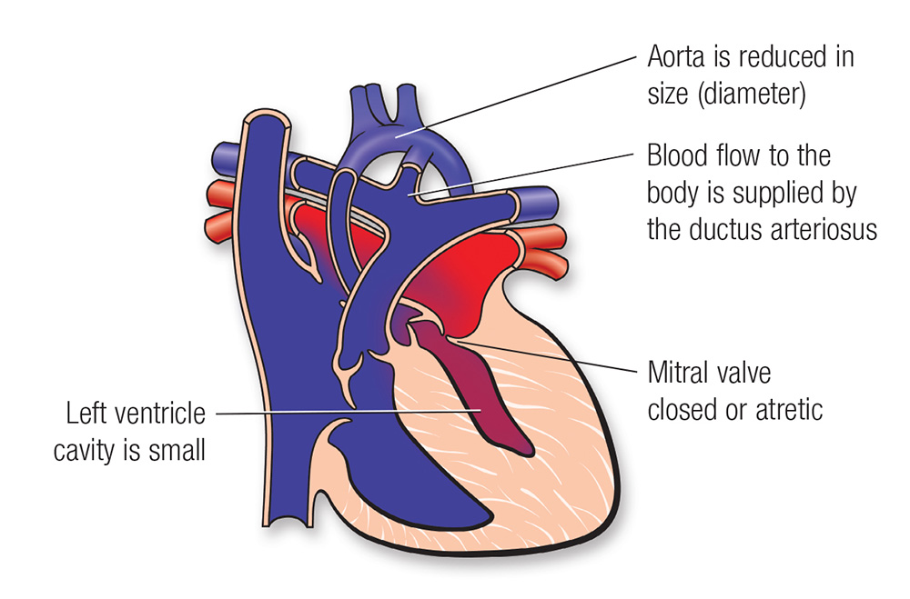 Single Ventricle Defects | American Heart Association