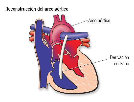 HLHS Aortic Arch SP