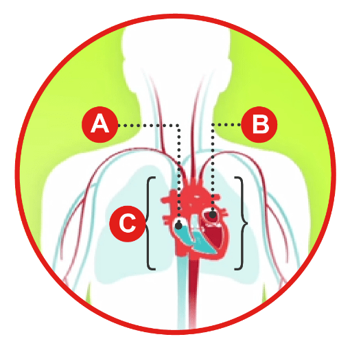 Types of heart failure diagram