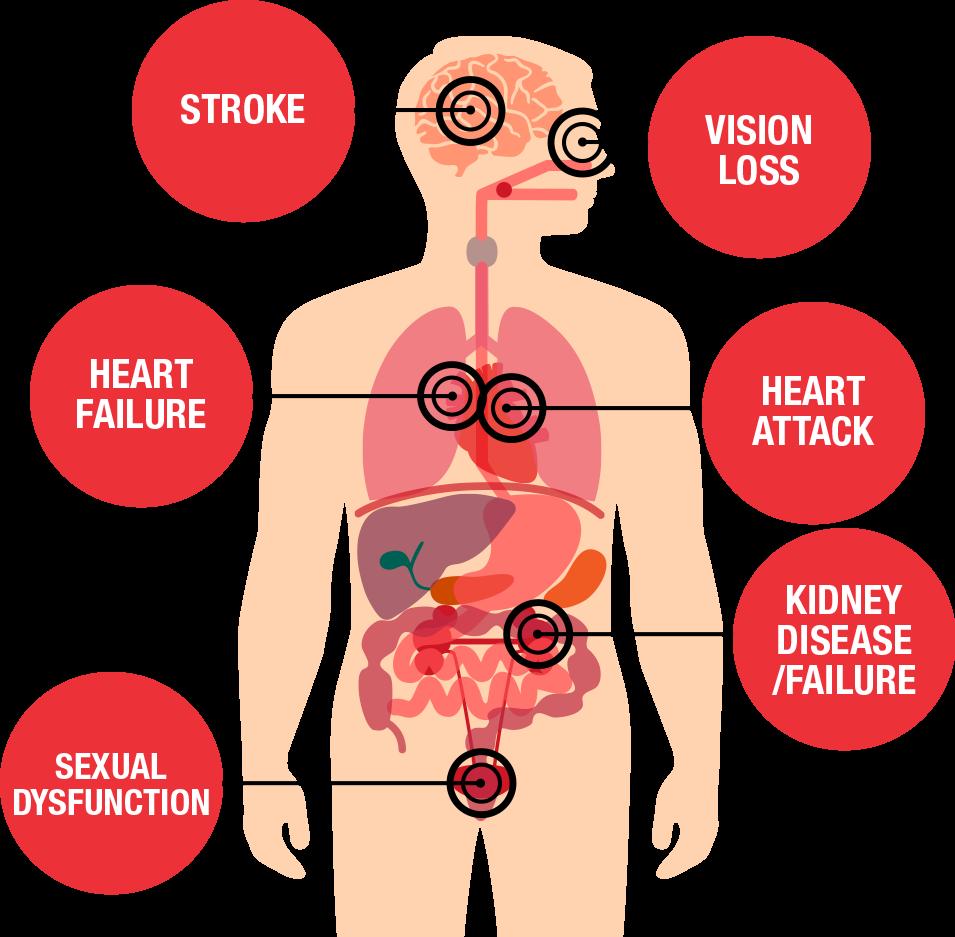 hypertension causes betiltott vernyomascsokkentok