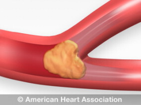 e44b66963399e How High Blood Pressure Can Lead to Stroke | American Heart Association