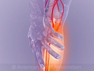 Peripheral Artery Disease American Heart Association