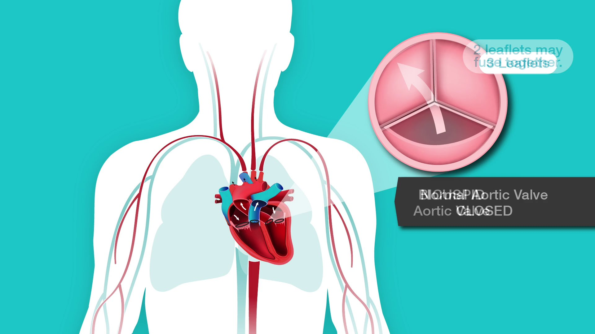 Problem Aortic Valve Stenosis American Heart Association