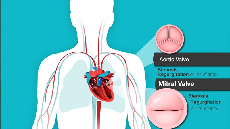 Heart Murmurs And Valve Disease American Association Diagram Click For Details Show Me A Of The Human What Causes