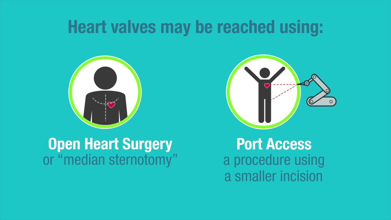 Types Of Replacement Heart Valves American Heart Association