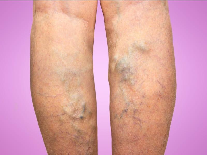 why varicose veins