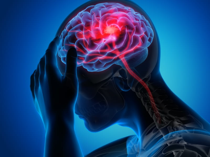 PTSD may heighten stroke risk in younger adults | American Heart ...