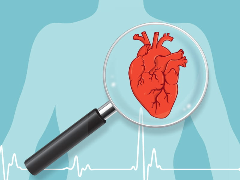 Clogged arteries are not the only sign of cardiovascular disease | American  Heart Association