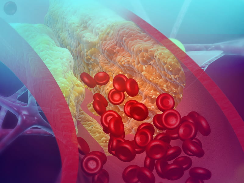 Inherited high cholesterol may be common in people with heart disease | American Heart Association