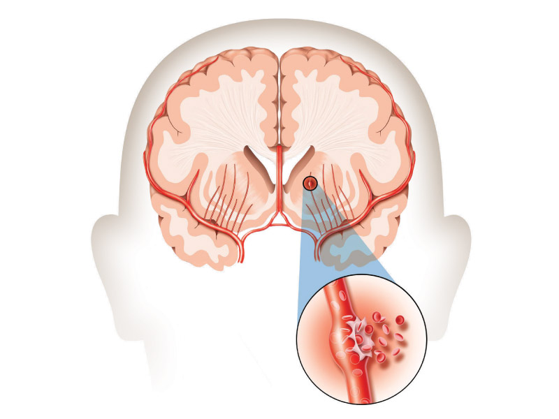 A hemorrhagic stroke occurs when a weakened blood vessel ruptures and spills blood into the brain. (American Heart Association/American Stroke Association)