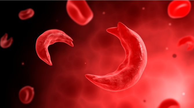 Sickle cell red blood cells