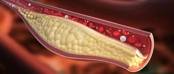 Image result for high cholesterol