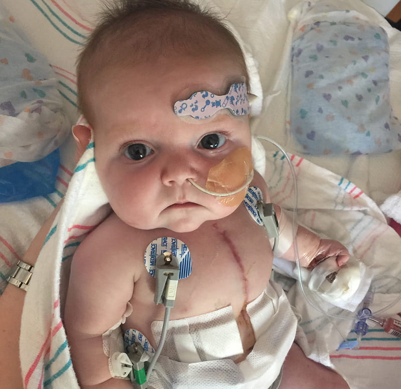 Halle was just 3 days old when she had her first heart surgery, followed by another at 4 months old. (Photo courtesy of Autumn Spivey)