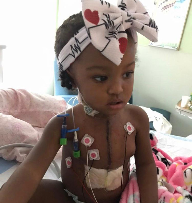 Bella Wilborne after her third open-heart surgery in February 2020. (Photo courtesy of Latisha Wilborne)