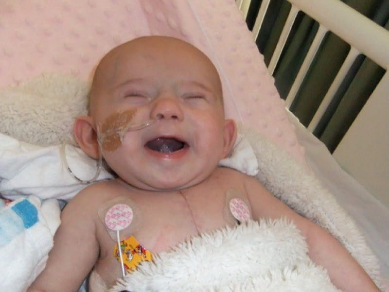 Maggie Maine, who was born with heart and brain defects. (Photo courtesy of the Maine family.)