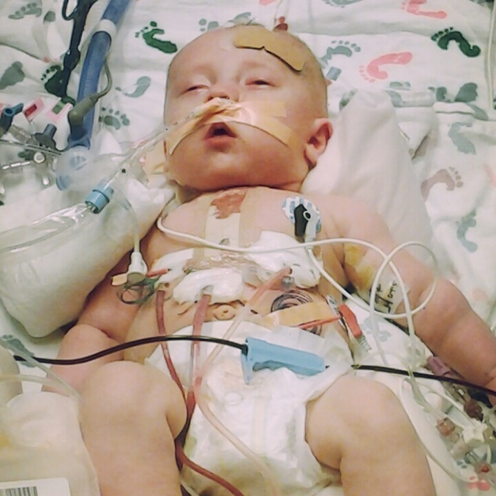 Kaden Livesay, post-surgery. At six months old, he had surgery to repair a leaky heart valve. (Photo courtesy of the Livesay family)