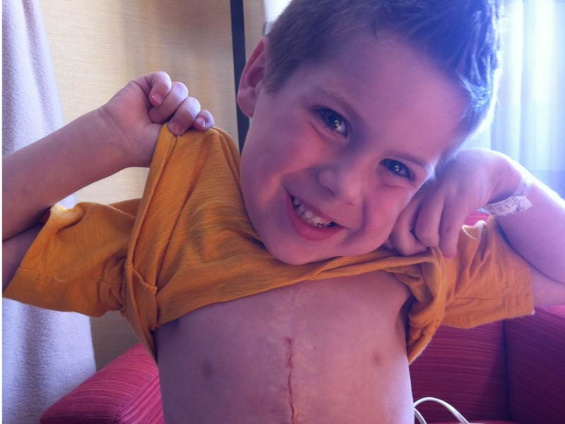 Gavin Kuykendall showing his heart surgery scar.